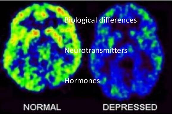 biological explanation of unipolar depression The biological causal factors in unipolar mood disorders are those which affect the levels of hormones such as cortisol and melatonin, or neurotransmitters such as serotonin, endorphins, gamma-aminobutyric acid and norepinephrine, all of which can alter mood and may be potential causes of depression.